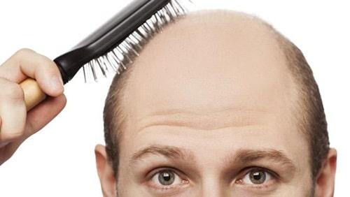 understanding balding
