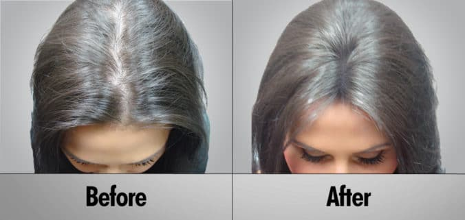 Hair Loss: Does Laser Hair Growth Really Work?