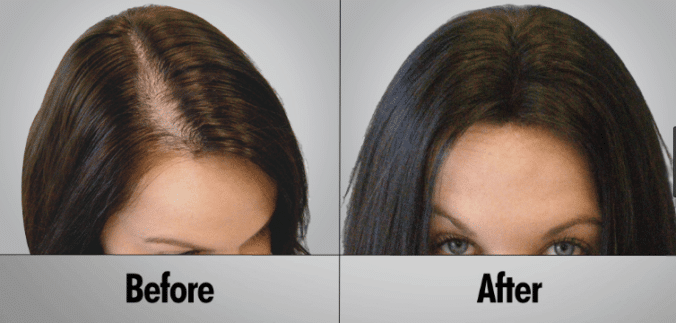 Best Products After Using Laser Hair Growth Devices