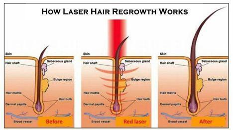 laser hair growth works