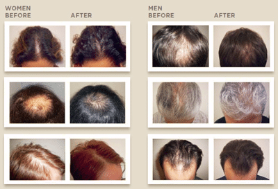 laser hair growth for men and women