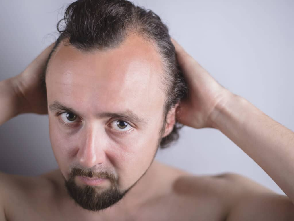 causes of hereditary pattern hair loss