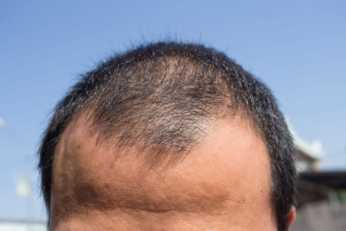 connection between hair loss and genetics
