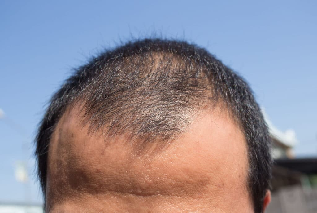statistics about hair loss