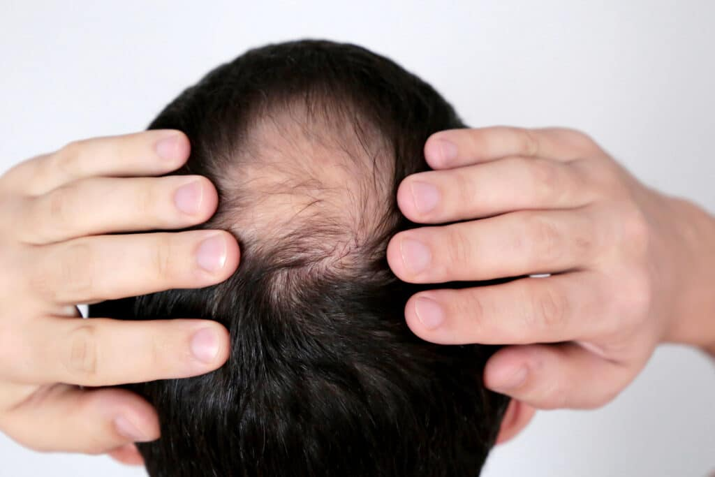 all hair loss is not permanent