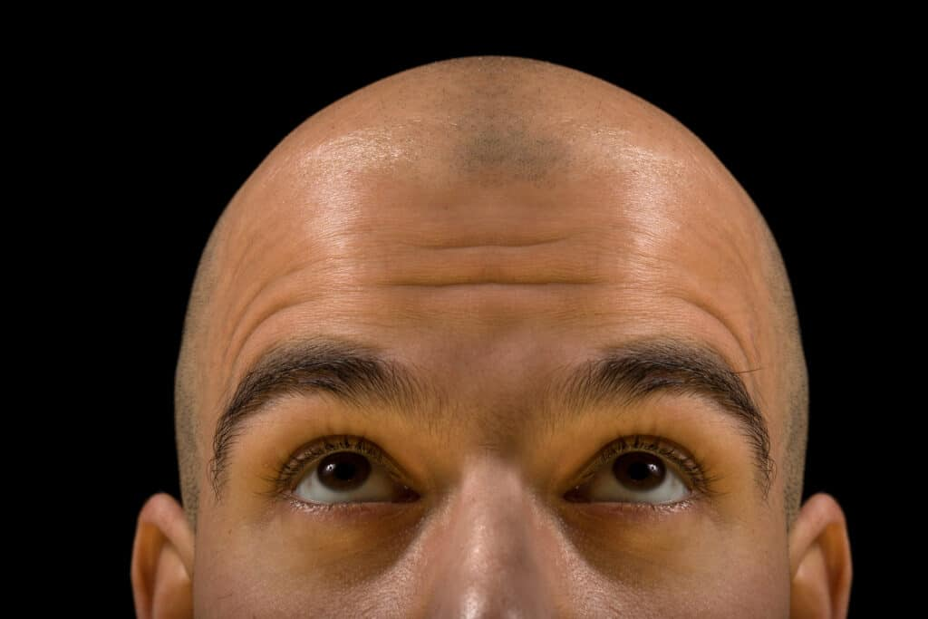 laser hair regrowth caps can cure baldness